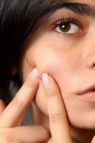 pimple Guest Post: Is Your Makeup Causing Acne?